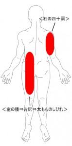 坐骨神経痛 症例1 画像